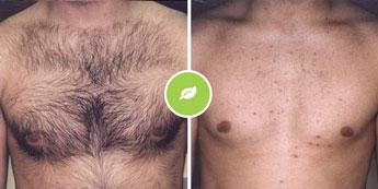 Dermal trajno odstranjevanje dlak Elos